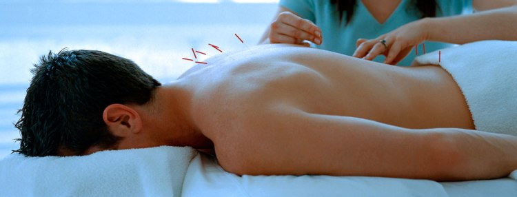 man-getting-acupuncture-vs-chiropractic-treatment